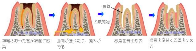 感染根管治療の流れ