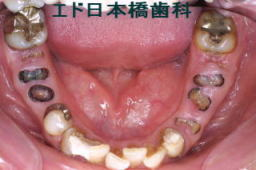 下顎インプラント5本術前