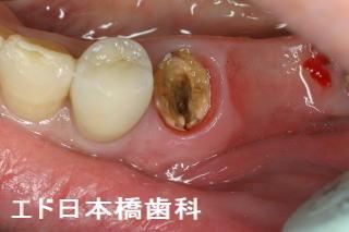 歯が割れる、歯根にひび、歯根破...