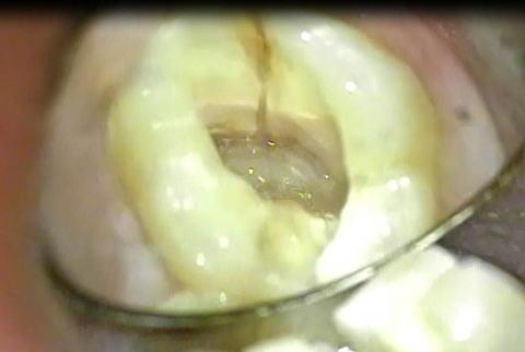 歯の破折状況をマイクロスコープで確認した写真