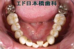 下顎インプラント5本術後