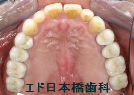 下顎インプラント 2本術後