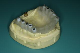インプラント正確に埋入するためのインプラント手術ガイド