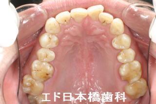 固い もの を 噛む と 歯 が 痛い