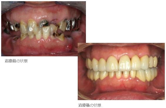いままで、虫歯を多数放置してきて 今回、全体的に治療をお ...