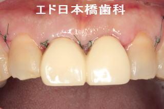 歯肉を切除