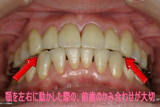 前歯の嚙み合わせ