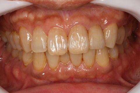 左上前歯がブリッジ