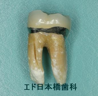 歯根破折で抜歯となった歯の状態
