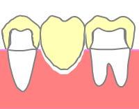 欠損した部位の歯肉が下がっているブリッジ
