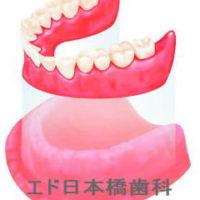 親知らずの痛み・腫れと抜歯 | エド日本橋歯科