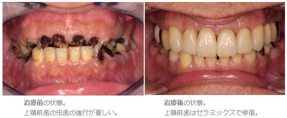 いままで、虫歯を多数放置してきて今回、全体的に治療をお考えの方へ