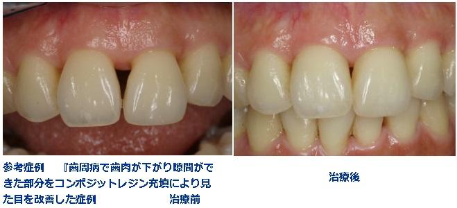 見える が から 歯茎 歯