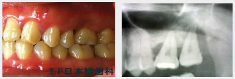 下顎インプラント2本術前