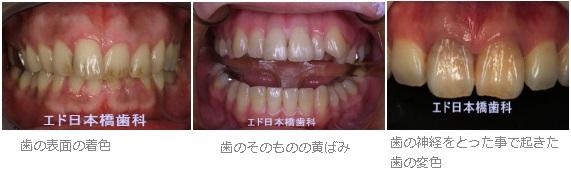 黄ばん だ 歯 を 白く する 裏 技