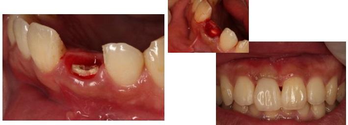 歯を削らないブリッジ症例5