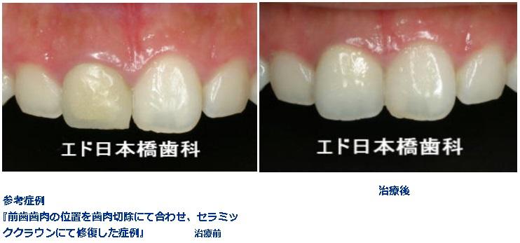 前歯の歯肉の位置が左右で違うのが気になる