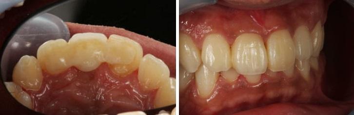 歯を削らないブリッジ症例7