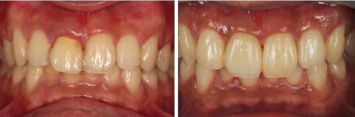 歯を削らないブリッジ症例8