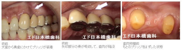 歯肉移植ブリッジ症例1