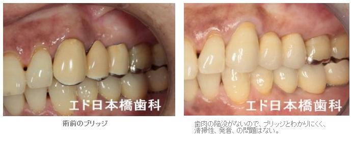 歯肉移植ブリッジ症例3
