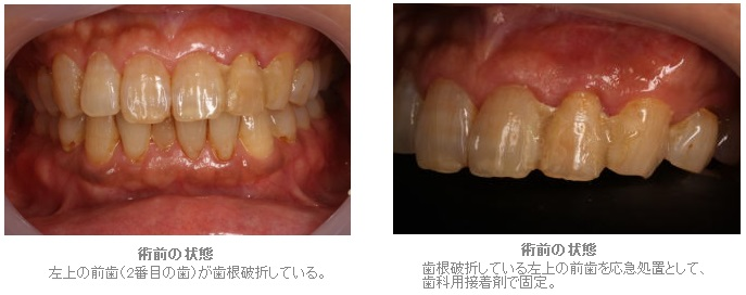 抜歯窩保存術を行ったブリッジ症例1