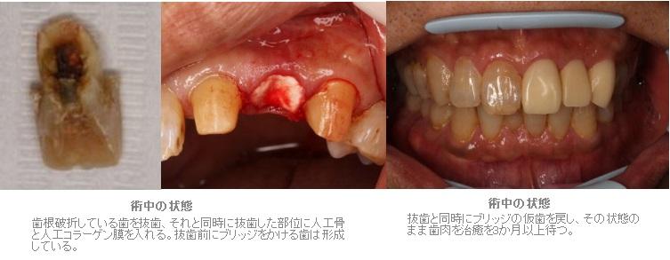 抜歯窩保存術を行ったブリッジ症例2