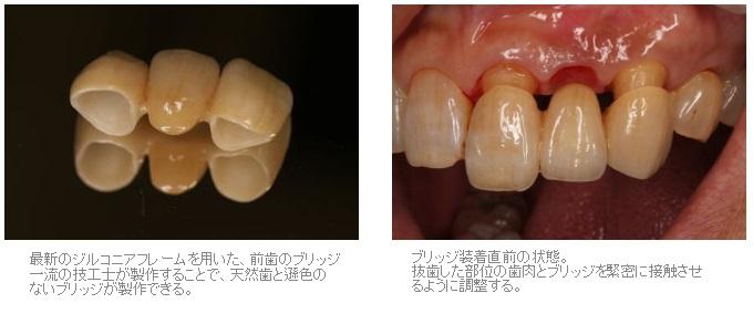 抜歯窩保存術を行ったブリッジ症例3