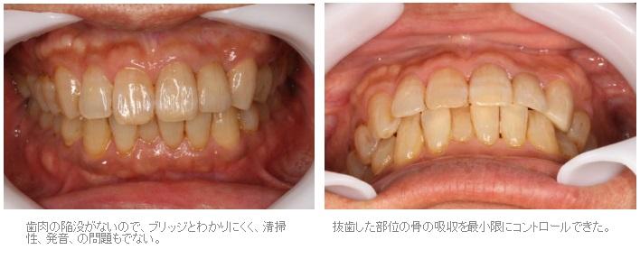 抜歯窩保存術を行ったブリッジ症例4