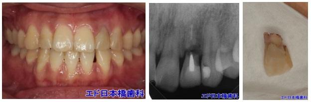 歯を削らないブリッジ症例1