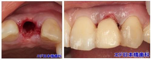 歯を削らないブリッジ症例2