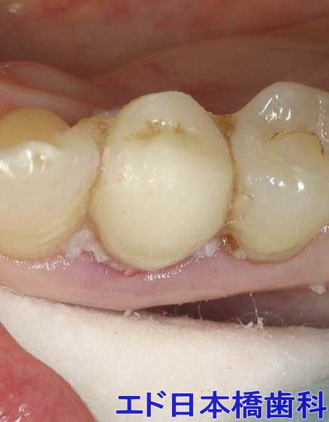 人工歯を隣の歯に接着