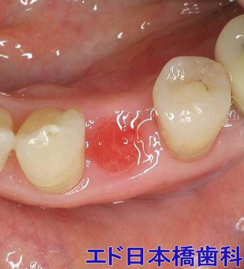 抜歯部位が治癒