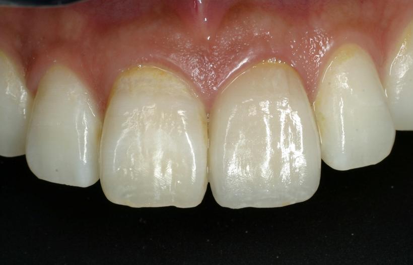 前歯の治療《よくある前歯の悩み》14症例で解説   エド日本橋歯科