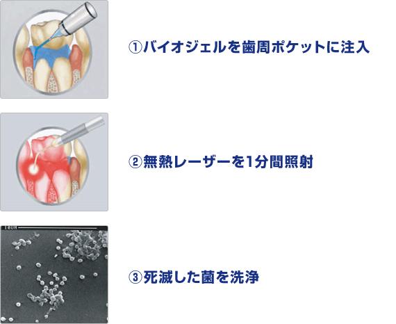 歯周病治療での処置方法