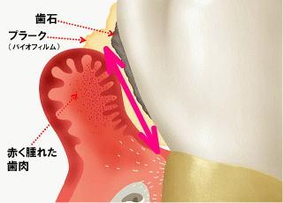 PDT(光線力学量)の適応症