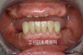 歯を多数失った症例の治療前