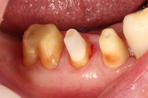 クラウンの脱離、歯根破折を起こさない、良好に長期維持する ...